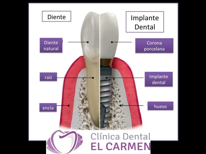 Cl nica dental el carmen implantolog a dental en la for Clinica dental el escorial