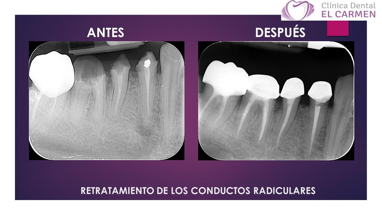 Clínica Dental El Carmen RETRATAMIENTO DE LOS CONDUCTOS RADICULARES ...